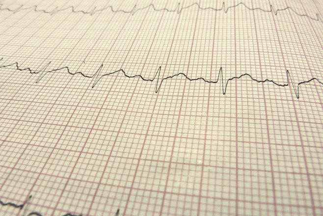 ekg-line-hearthbeat-1141654